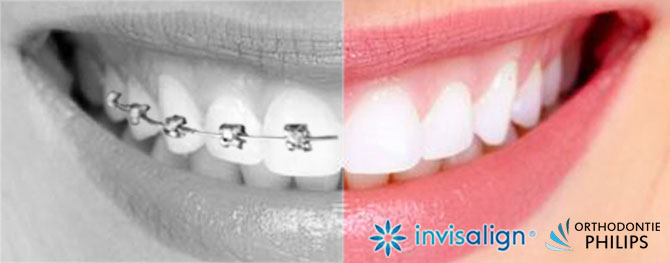 Invisalign, the invisible aligners for teenagers