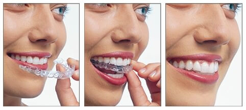 orthodontiste-bruxelles-invisalign-philips